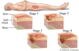 Stages of Body Sore 300x196 - The Rollin RN: GETTING THE SCORE ON A PRESSURE SORE