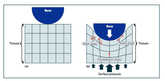 shear1 - Shear Facts about Pressure Injuries