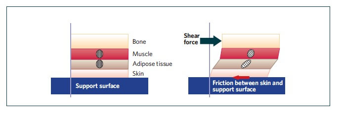shear2 - Shear Facts about Pressure Injuries