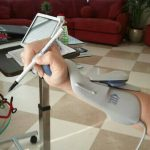 Electrical Stim Hands 150x150 - Lifelong Science Experiment - Living with Spinal Cord Injury