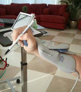 Electrical Stim Hands 267x300 - Electrical Stim Hands