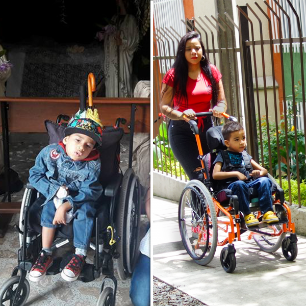 MIGUEL B4 AND AFTER 600x600 - PUSHLiving Podcast #30: Assistive Products: For Everyone, Everywhere with Keoke King